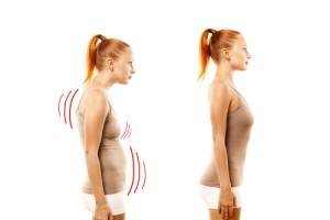 Bad Posture- Osteopathy