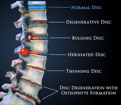 Low Back Pain Osteopathy Singapore