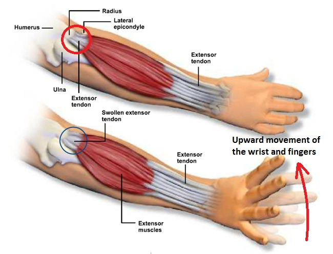 What Is Tennis Elbow Osteopathy Singapore