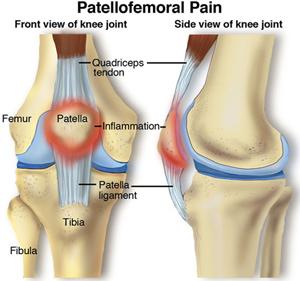 Runners Knee-osteopathy