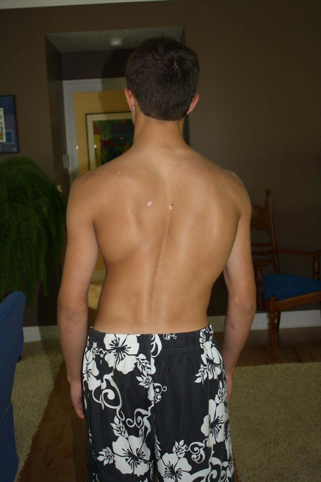 Watching Out For Functional Scoliosis Osteopathy Singapore