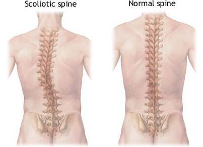 scoliotic spine