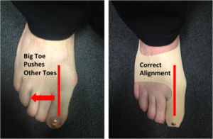 Toe alignment correction