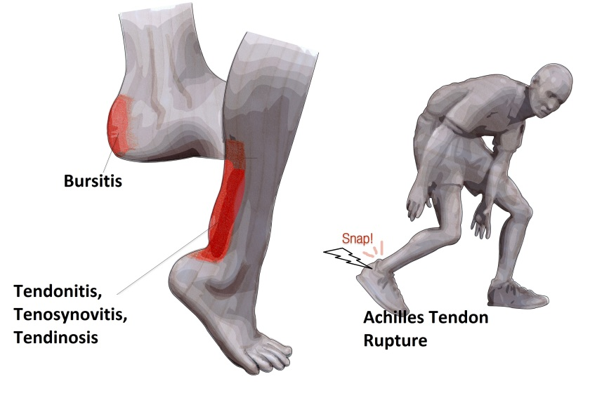 Achilles Tendon course of injury