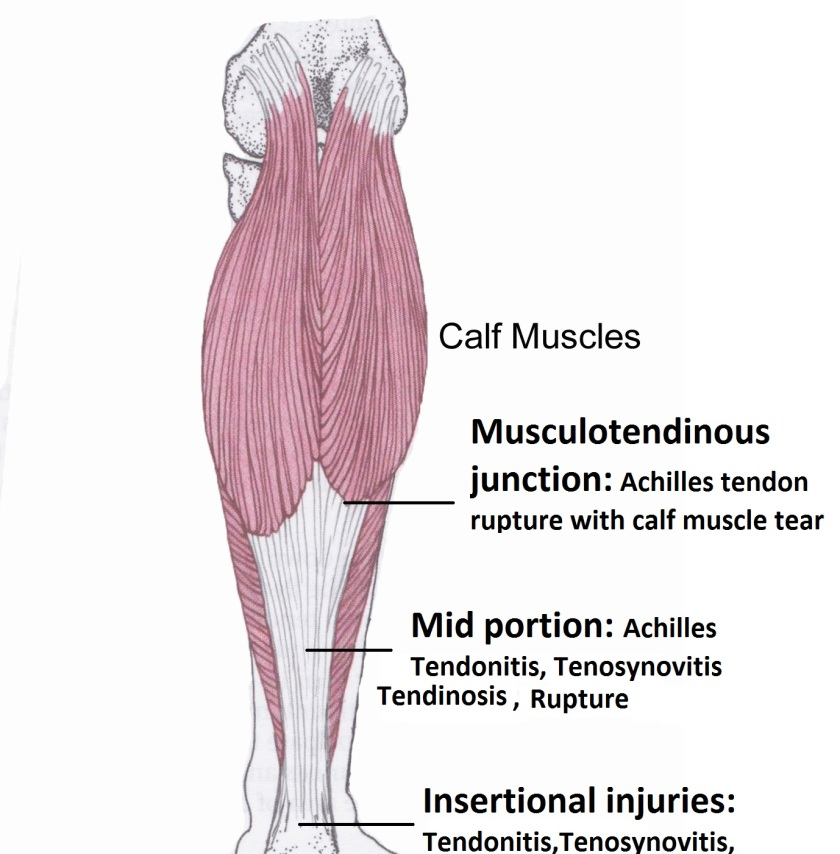 achilles tendon injury locations
