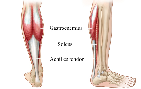 achilles Tendon main
