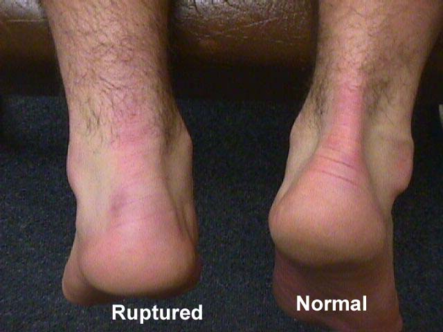 achilles tendon rupture and normal