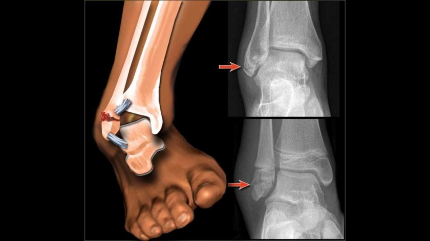 ankle sprain with bone fracture