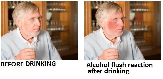 flushing consumption Facial alcohol