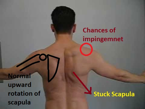 chances of impingement