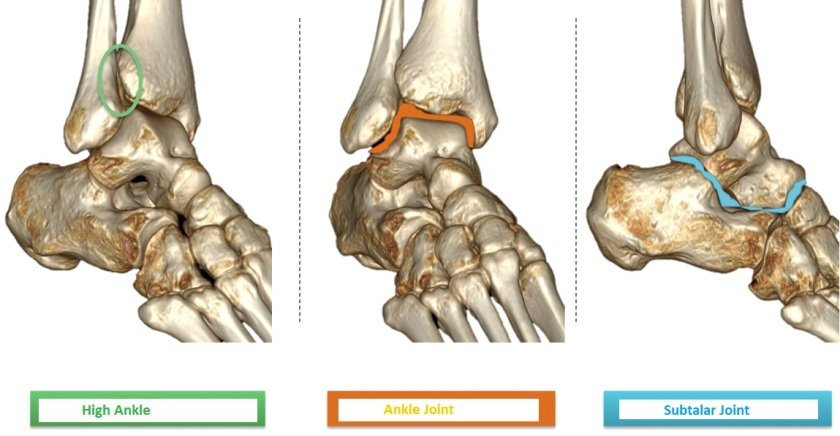 joints of the ankle