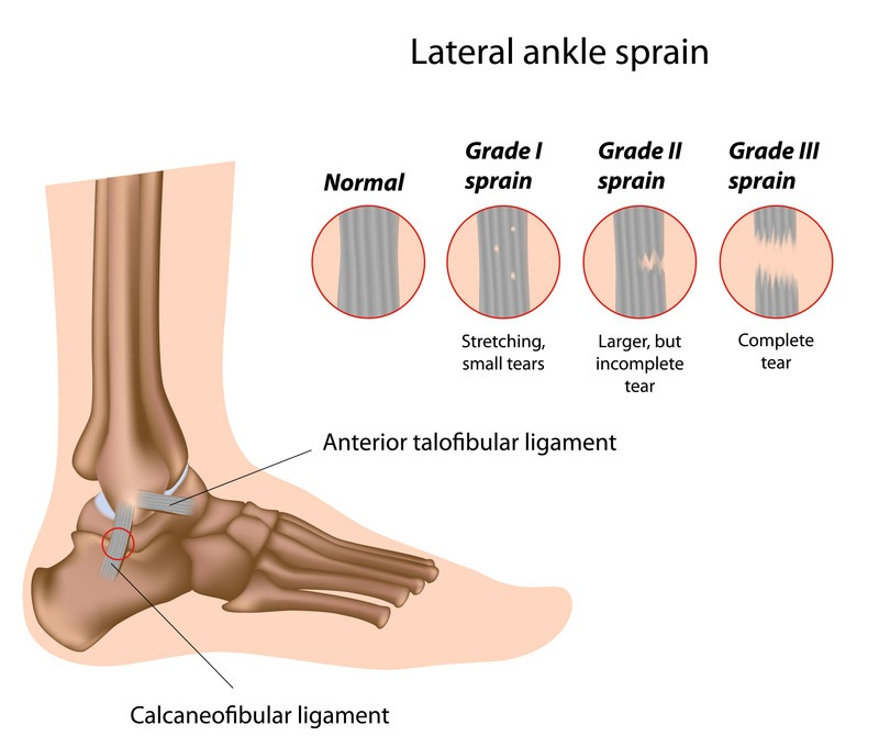 lateral ankle sprain