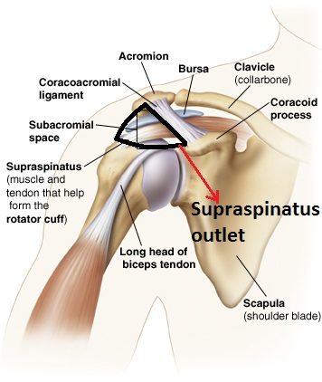 Subacromial outlet