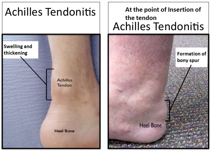 Tendonitis insertion