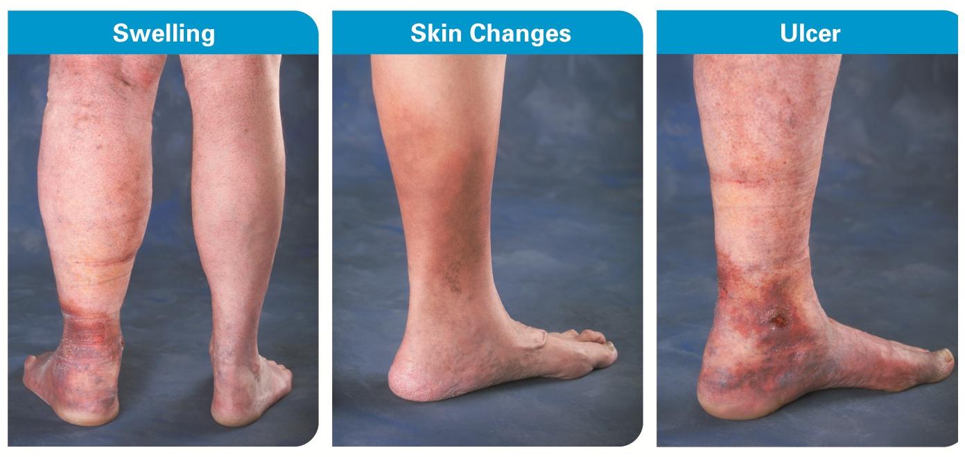 broken veins in legs how to get rid