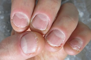 Gnawed nails
