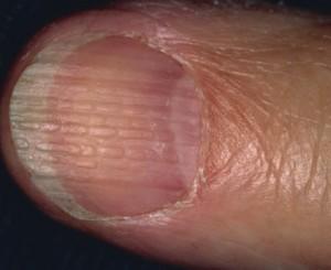 nail beading