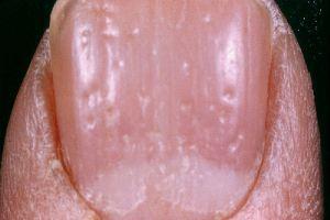 nail pits