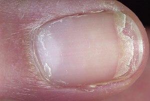 split nail